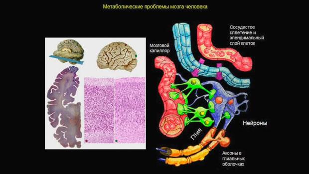 Слайд 8. Метаболические проблемы мозга человека